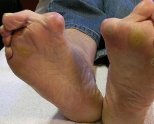 2.1 diabetische voet