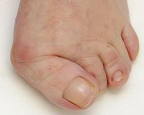 2.3 reumatische voet